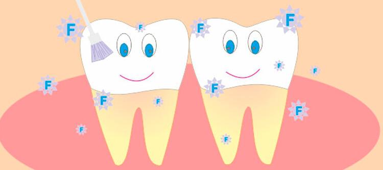 Эффективное фторирование зубов