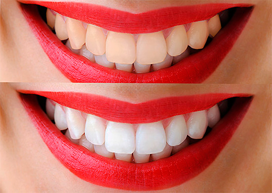 Безопасное фотоотбеливание зубов