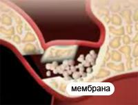 мембрана имплантация