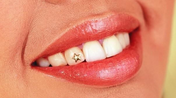 Неотразимая улыбка: украшения для зубов