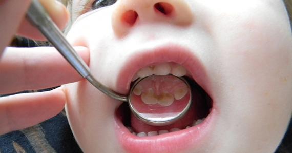 Кариес у детей до 3 лет. Лечение